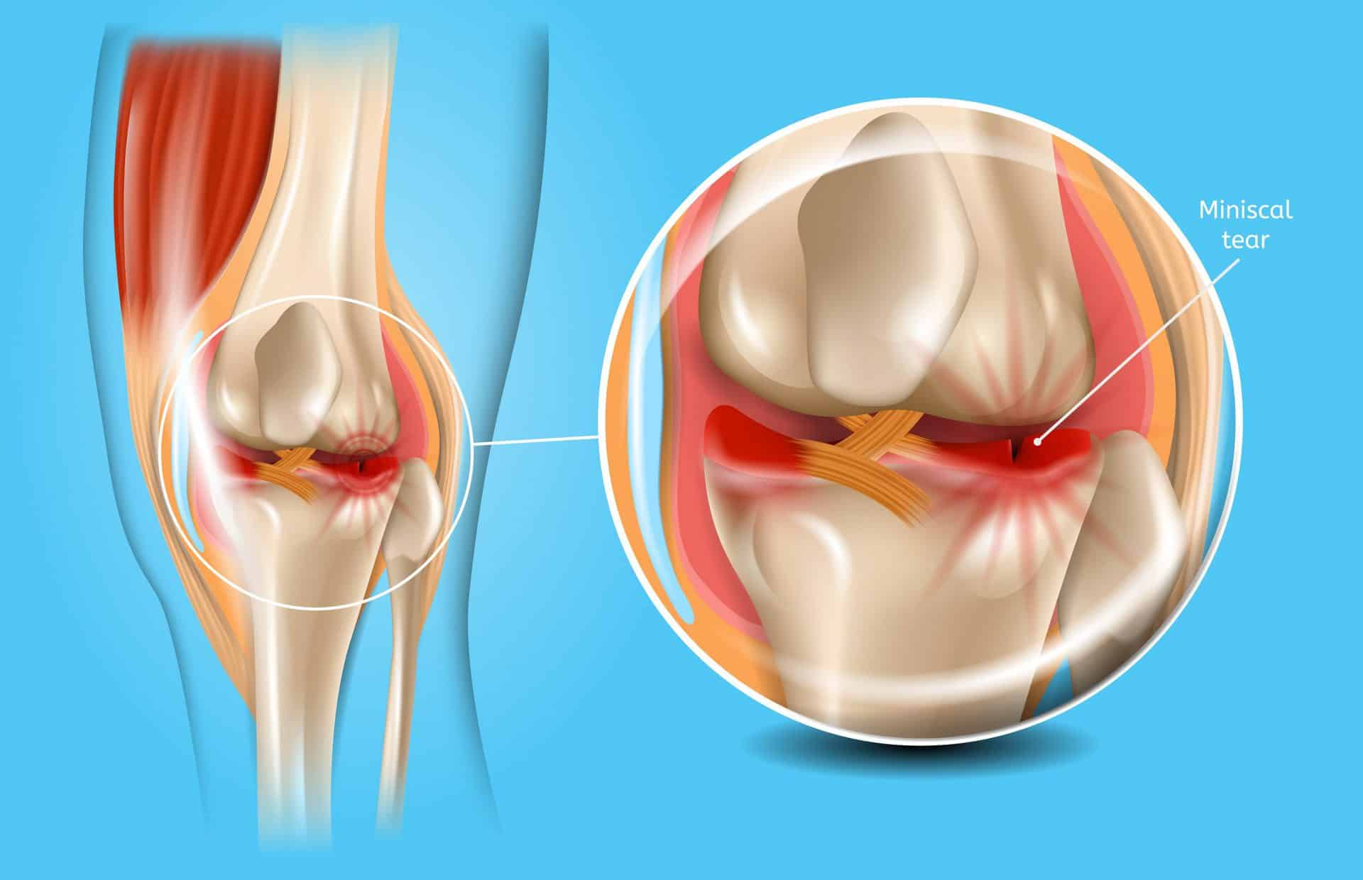 Knee,With,Torn,Meniscus,Realistic,Medical,Scheme,With,Damaged,Knee